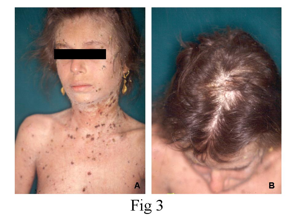 Scabies Crusted Causes Symptoms Treatment Scabies Crusted