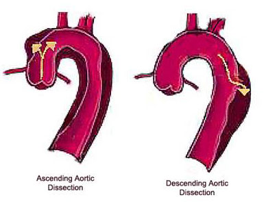 Thoracic aneury... Dilatation Meaning