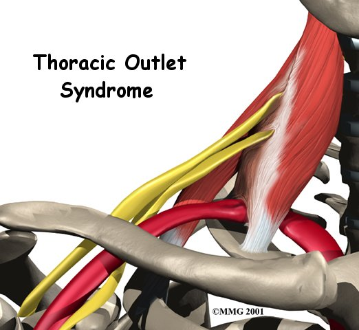Thoracic Outlet Syndrome Causes Symptoms Treatment