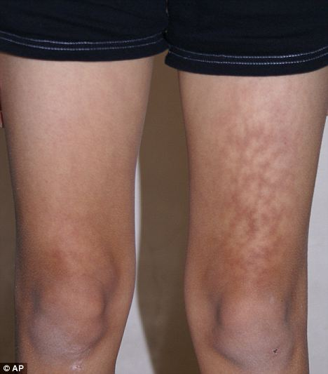 Toasted Skin Syndrome Causes Symptoms Treatment Toasted