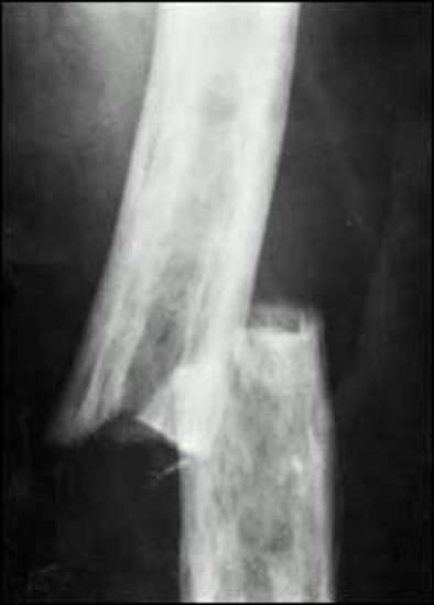 Transverse Fracture Causes Symptoms Treatment