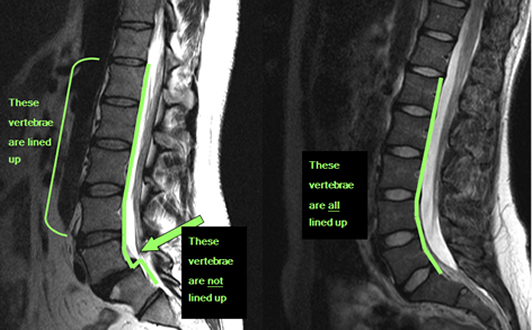 spondylothesis and vulva pain Spondylolisthesis is a fracture of the lumbar vertebra with a forward slippage of  one of the  apart from local low back pain this condition can cause referred pain  in the legs, due to  this can cause difficulty with vaginal birth.