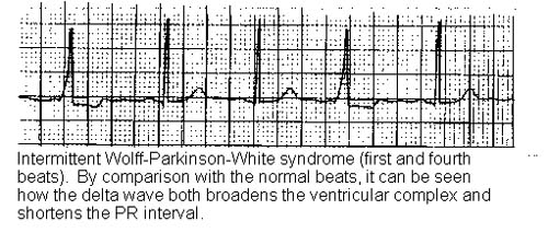 Wolff Parkinson White Syndrome Causes Symptoms